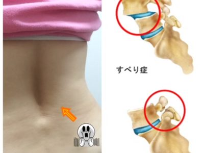 腰椎分離症・スベリ症と上手に付き合っていく方法